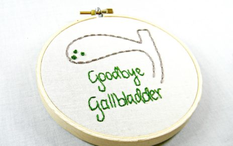 gall bladder stone treatment