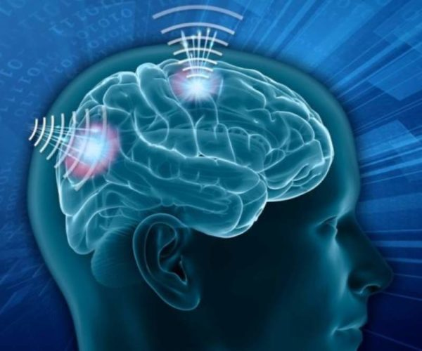 Wireless Brain Sensors Market